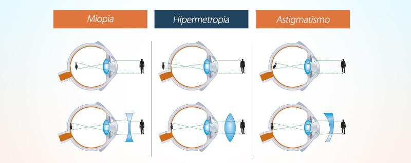 Clinica Bolzan Oftalmologia - Blog - A diferenca entre miopia, hipermetropia e astigmatismo