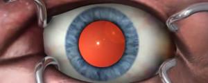 Clinica_Bolzan_-_Blog_-_Cirurgia_da_catarata-300x120