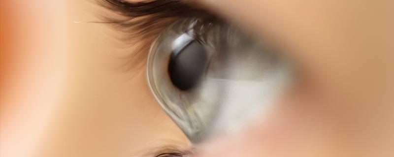 Clinica-Bolzan-Oftalmologia---Blog---Ceratocone