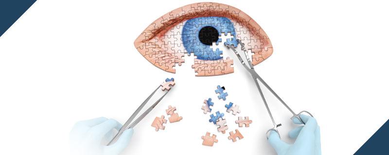 clinica-bolzan-oftalmologia-blog-catarata